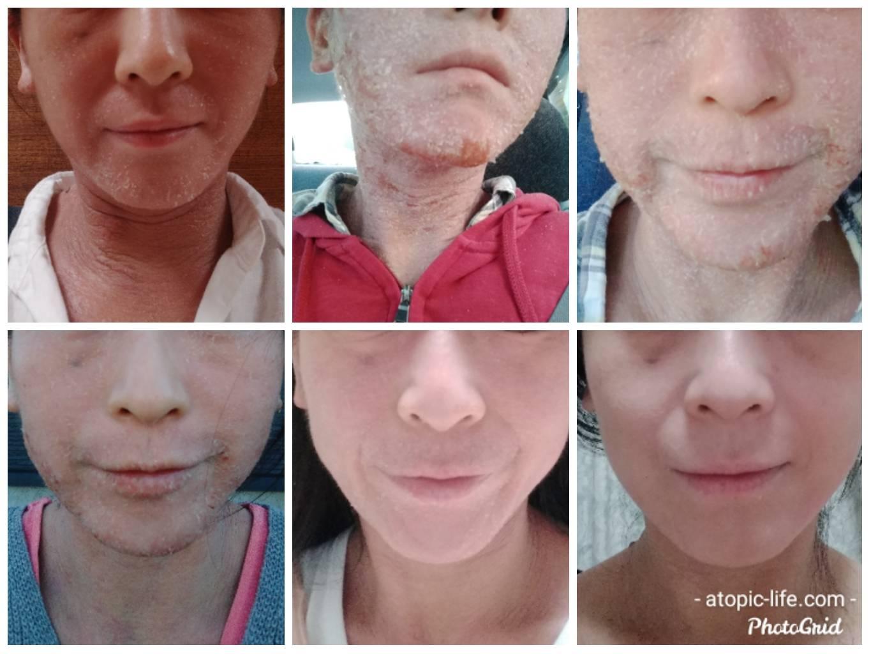 脱ステ開始から半年間顔画像